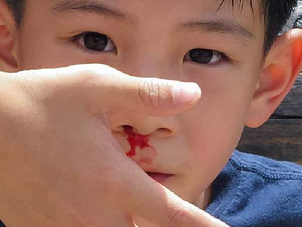 nosebleeding
