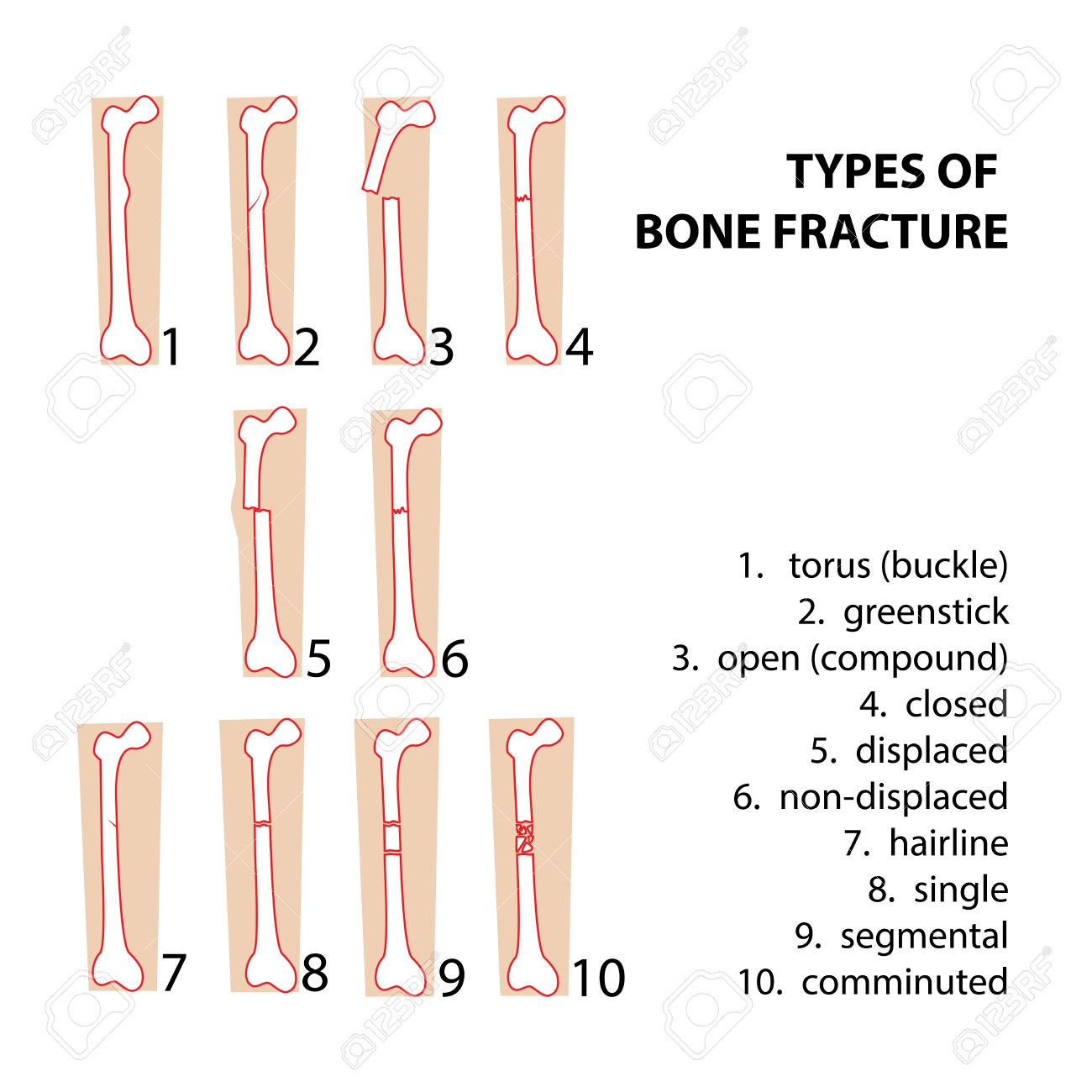What Are The Most Common Child Fractures Blogdaisy