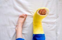 kid with a broken foot