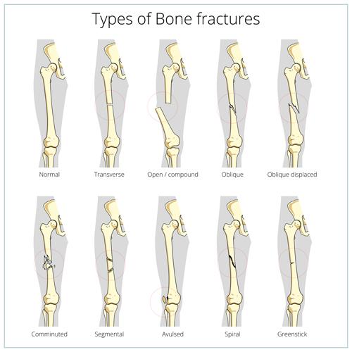 types bone fractures